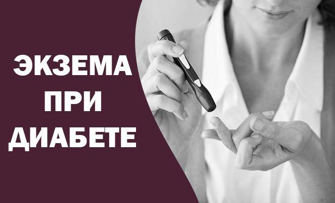 Экзема при диабете
