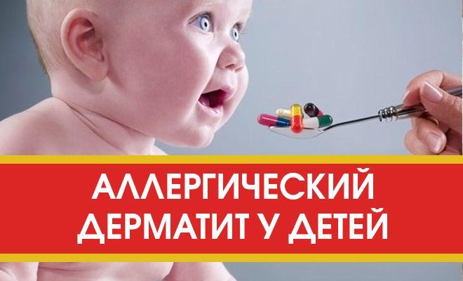 Как лечить аллергический дерматит у детей?