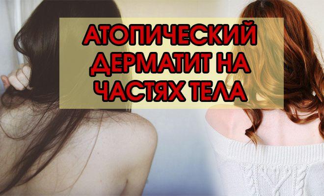 Атопический дерматит на частях тела: причины, симптомы