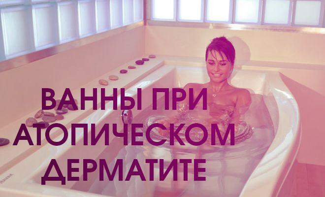 Как принимать ванны при атопическом дерматите?