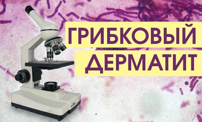 Дерматит грибковой этиологии
