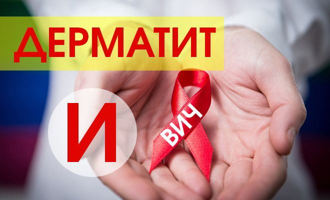 Как лечить дерматит при ВИЧ?
