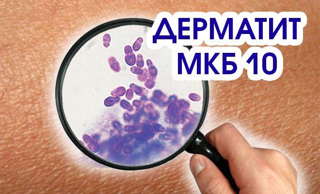 Что означает определение - дерматит МКБ 10?