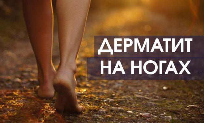 Дерматит появился на ногах