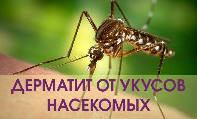 Дерматит от укусов насекомых
