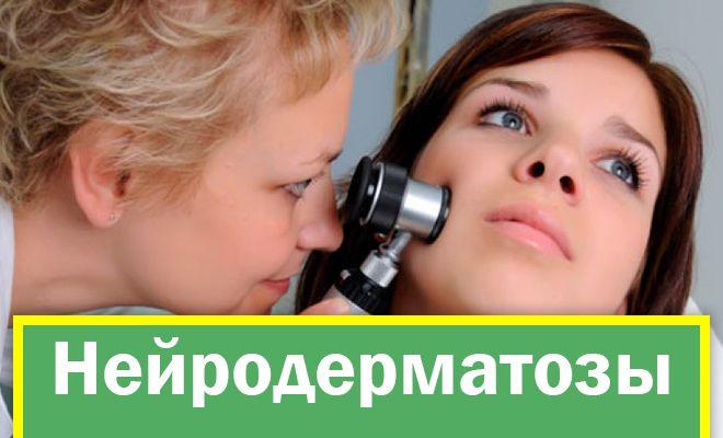 Нейродерматозы