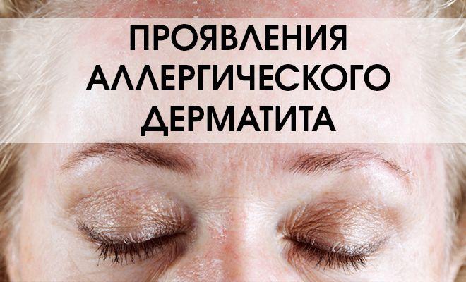 Проявления аллергического дерматита