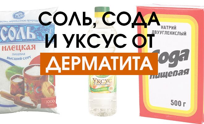 лечение дерматита содой, солью, уксусом