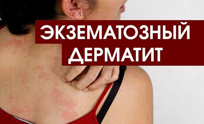 Экзематозный дерматит: лечение и профилактика