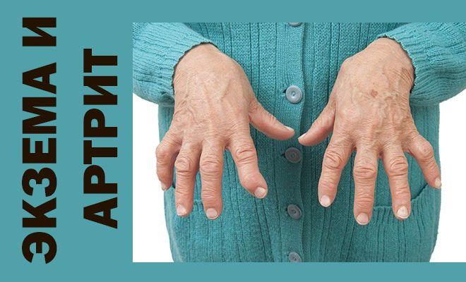 Экзема и артрит