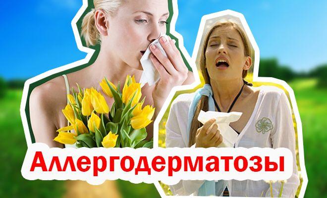 Аллергодерматозы
