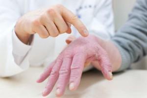 Атопический дерматит: симптомы у взырослых
