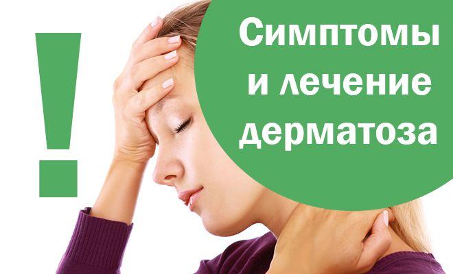 Аллергический дерматоз
