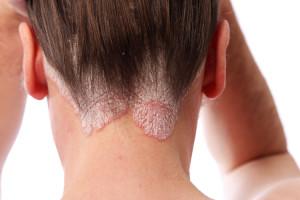 Что может послужить причинами возникновения себорейного дерматита?