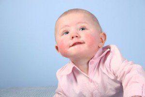Причины и симптомы контактного дерматита у детей