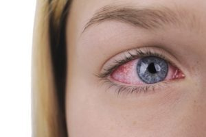 Хламидийный конъюнктивит: симптомы и особенности терапии