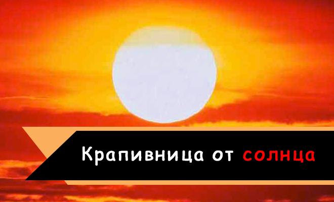 Крапивница от солнца: симптомы и лечение