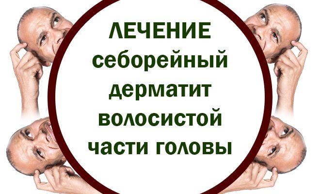 Лечение себорейного дерматита волосяной части головы