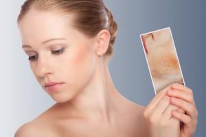 Особенности лечения стероидного дерматита