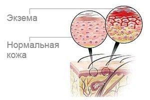 Особенности лечения экземы