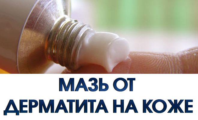 Атопический дерматит. Мази