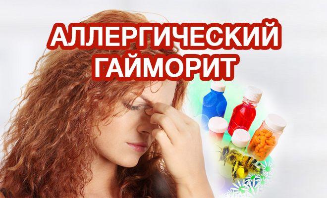 Особенности проявления аллергического гайморита