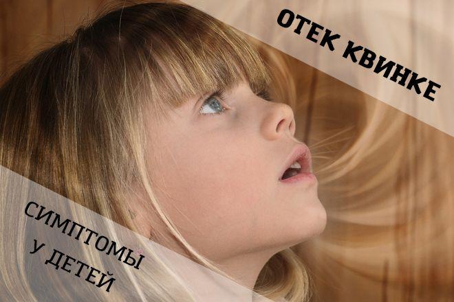 Как проявляются симптомы отека Квинке у детей