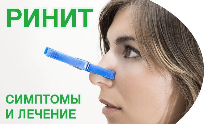 Основные симптомы ринита и его лечение