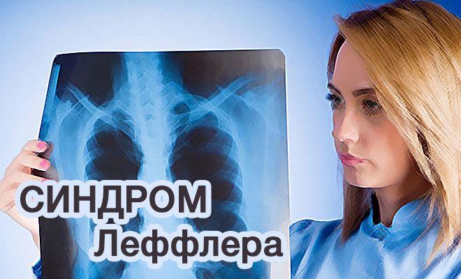 Нечем дышать: как распознать, диагностировать и лечить болезнь Леффлера