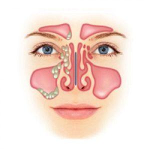 Риносинусит: особенности течения, лечение