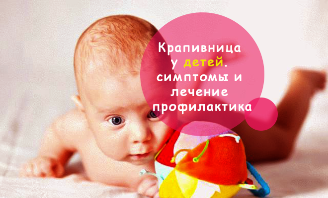 Крапивница у детей