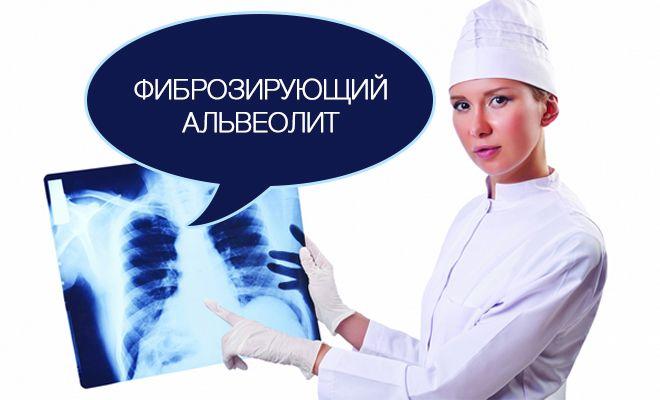 Фиброзирующий альвеолит — опасное состояние