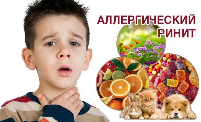 Аллергический ринит: причины и лечение