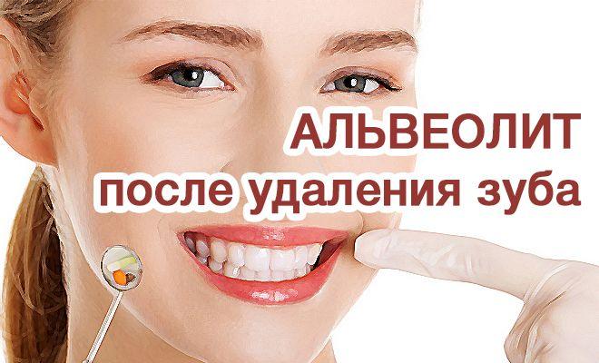 Альвеолит вследствие удаления зуба