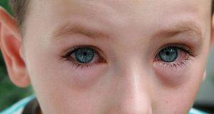 При простуде у детей бывает конъюнктивит