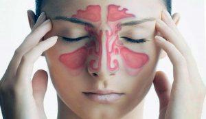 Риносинусит. Диагностика