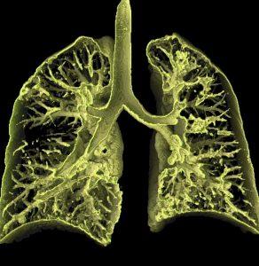 Диагностика альвеолита легких
