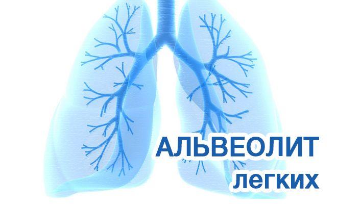 Альвеолит легких: причины и лечнеи