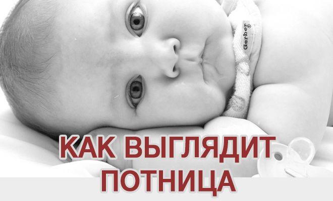 Как выглядит потница у ребенка