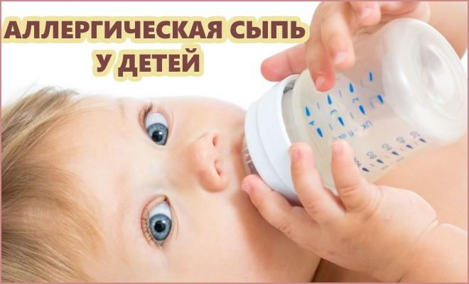 Аллергическая сыпь у детей