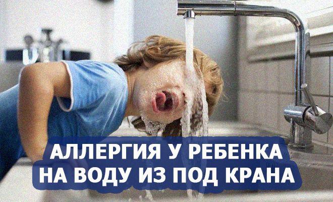 Аллергия у ребенка на воду из-под крана
