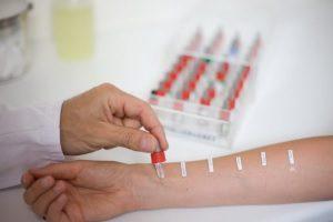 Кожные пробы на аллерген