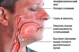 Общая клиническая картина