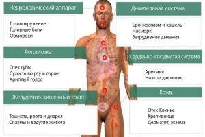 Симптоматика аллергической реакции
