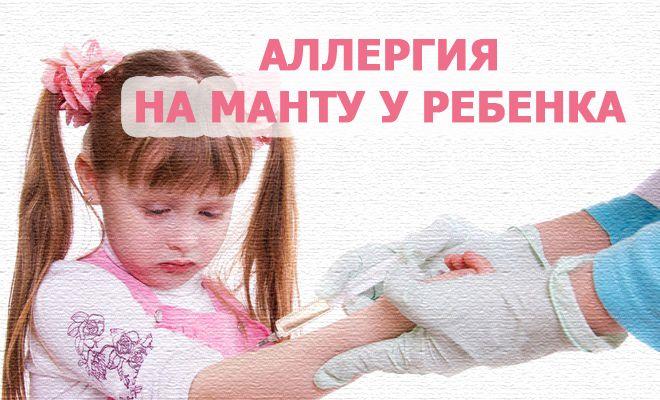 Аллергия на Манту у ребенка