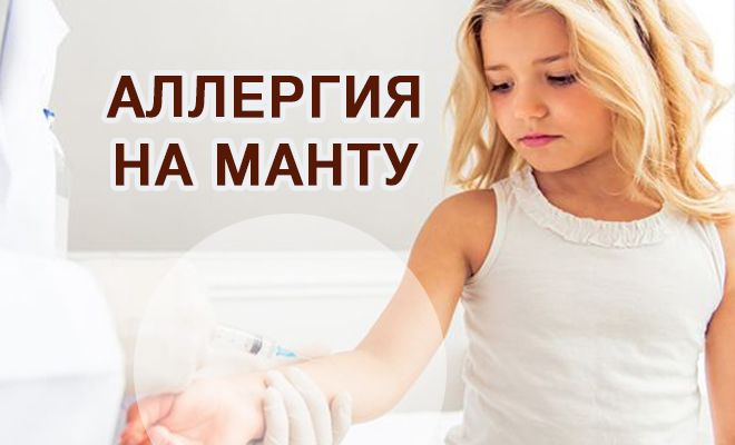 Аллергия на Манту