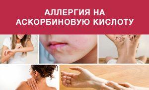 Аллергия на аскорбиновую кислоту