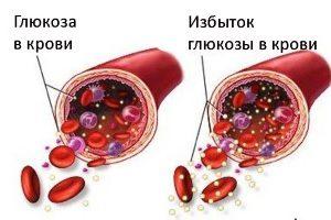 Избыток глюкозы в крови