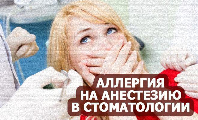 Аллергия на анестезию в стоматологии