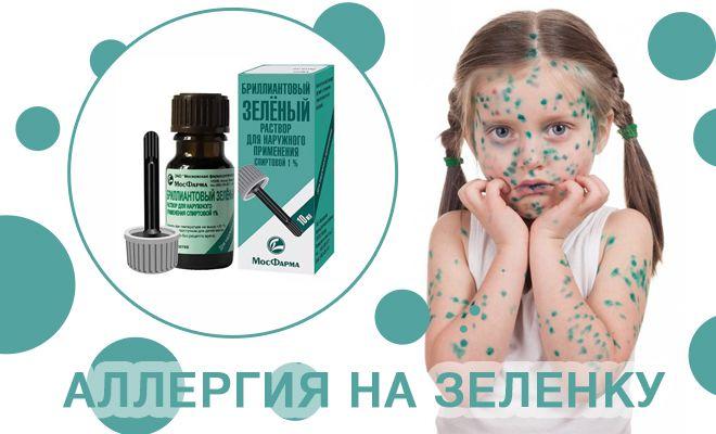 Аллергия на зеленку